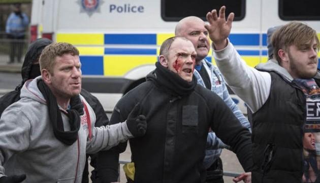 У британському Дуврі акція проти мігрантів закінчилася бійками, є поранений