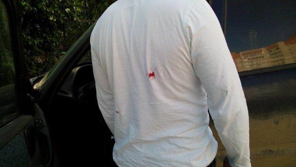 ранение сотратника Навального