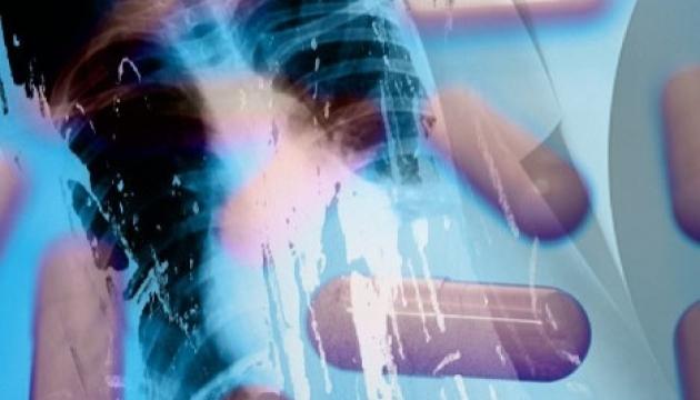 МОЗ: За рік захворюваність на туберкульоз зросла на 8%