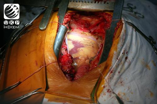 операция фото сердце человека
