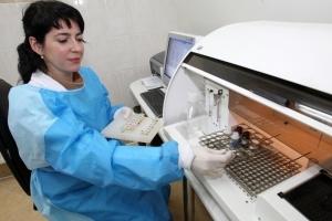 В Украине снижается уровень заболеваемости ВИЧ-инфекцией среди молодежи