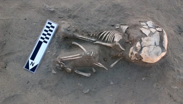 У немовляти, яке жило більше 5500 років тому, діагностували цингу