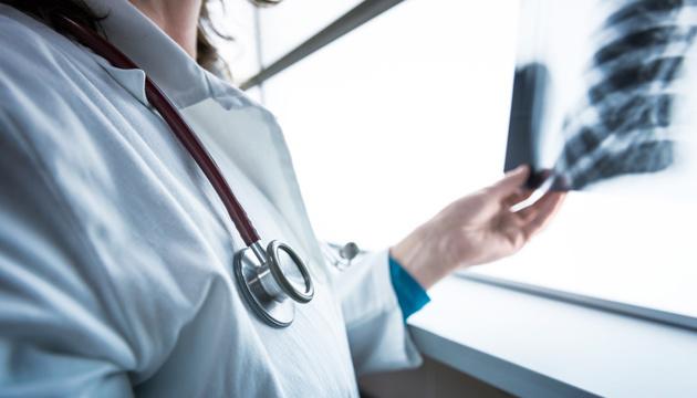Військові дії на Донбасі впливають на поширення туберкульозу в Україні — експерт