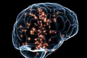 Штучний інтелект навчили знаходити аневризми мозку