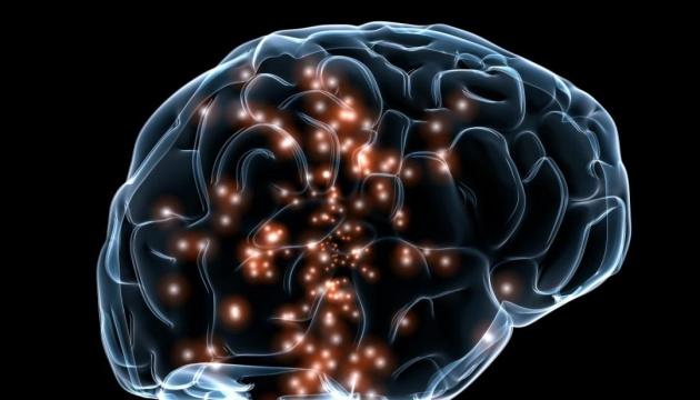 Искусственный интеллект научили находить аневризмы мозга