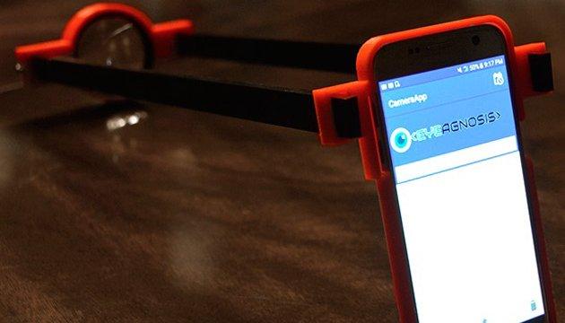 Школьница из США создала приложение для диагностики слепоты на ранних стадиях