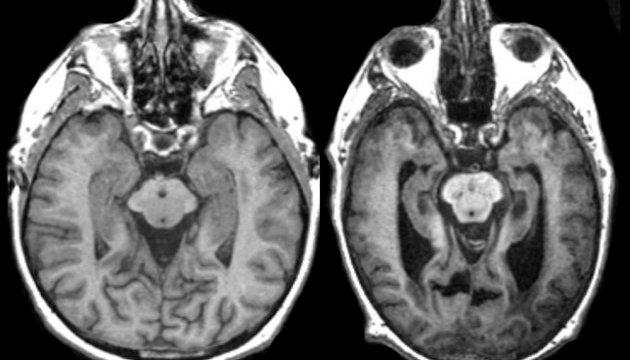 Штучний інтелект розпізнає хворобу Альцгеймера раніше медиків