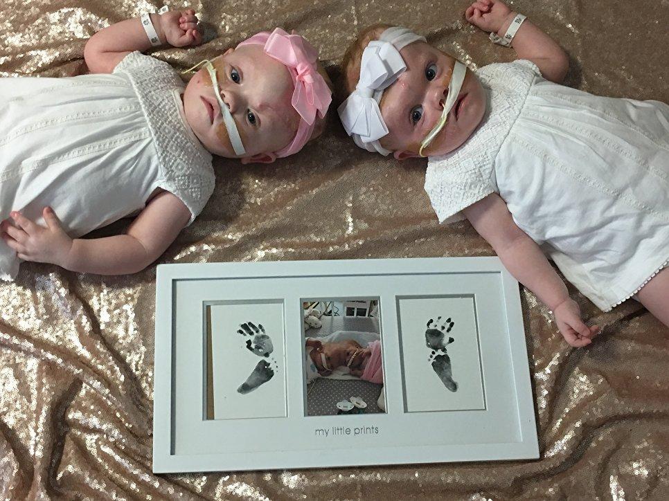 сіамські близнюки фото