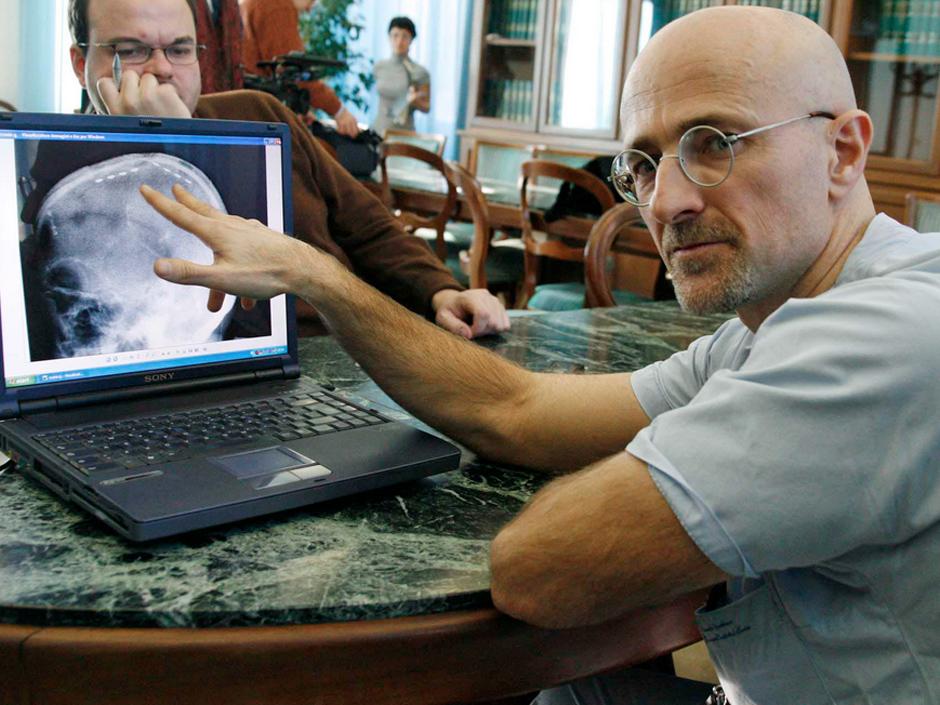Нейрохірург Серджіо Канаверо: «У мене була тільки година, щоб пересадити відрізану голову на нове тіло»