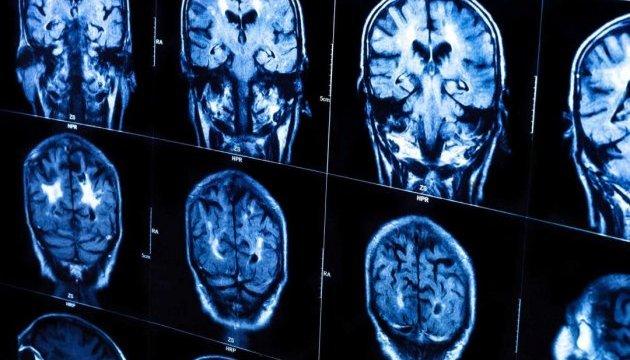 Искусственный интеллект «читает мысли» с данных томографии