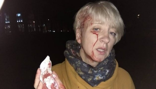 Полтавская судья заявляет об избиении, говорит напали