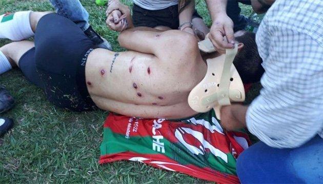 В Аргентині поліція розстріляла футболістів гумовими кулями