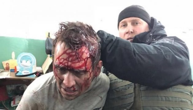 Захват Укрпочты в Харькове: задержанного обследуют на адекватность