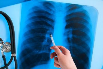 El número de casos de tuberculosis activa cae un 30% en Ucrania