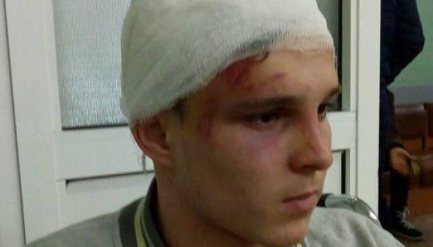На Київщині п'ятеро школярів по-звірячому побили сина чиновниці