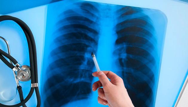 Стрес може призвести до розвитку туберкульозу - експерт