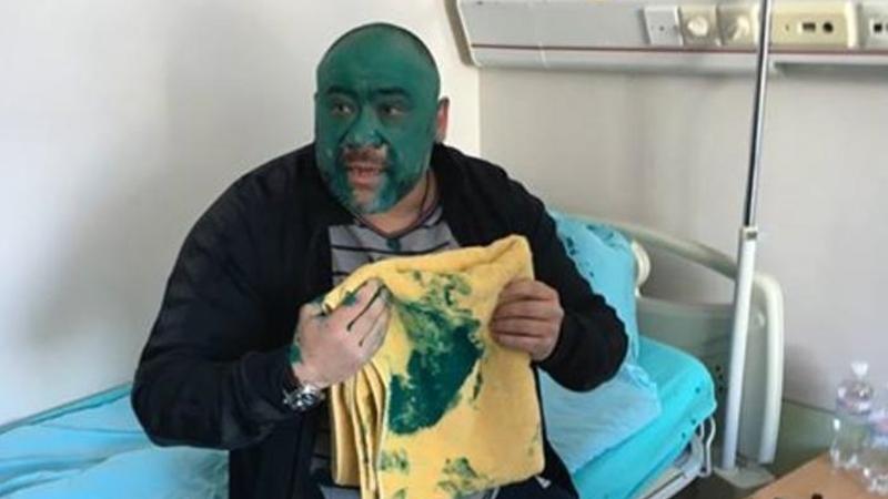 Юрій Крисін облитий зеленкою