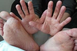 На Николаевщине девять детей из школы-интерната заболели корью