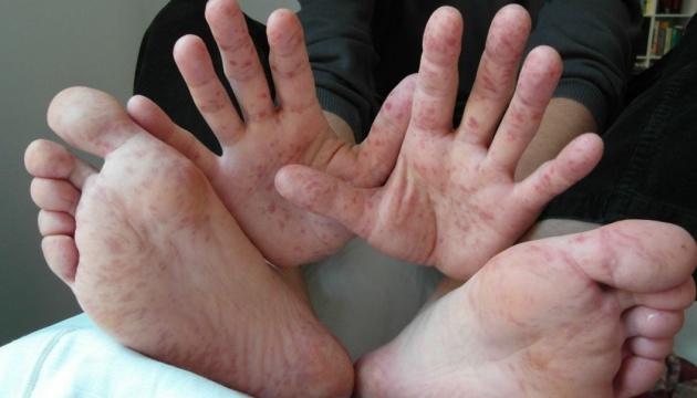 На Сумщині зростає кількість хворих на кір