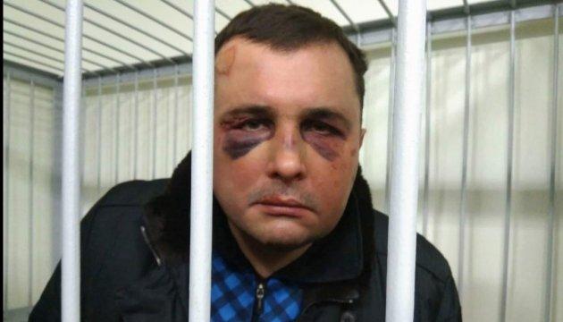 Шепелева с синяками на лице доставили в суд