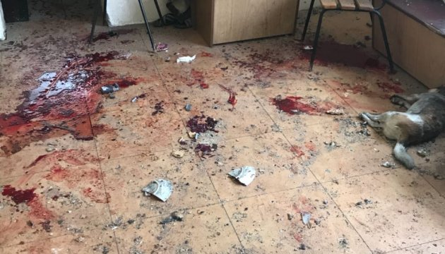Под Киевом задержали мужчину, бросившего гранату и ранившего трех человек