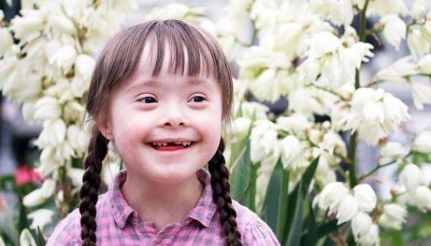 Маленькая черновчанка Мария с синдромом Дауна - известная в мире фотомодель