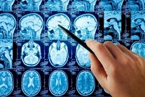 Як розпізнати інсульт: у школах запускають освітню програму