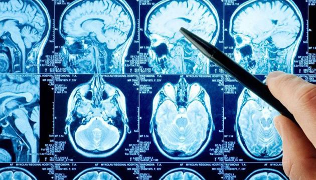 Половина украинцев не знает ни одного проявления инсульта — нейрохирург