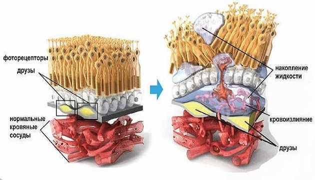 Альтернатива лазерному лікуванню ВМД