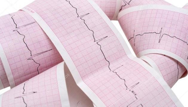 Ученые научили искусственный интеллект диагностировать инфаркт миокарда