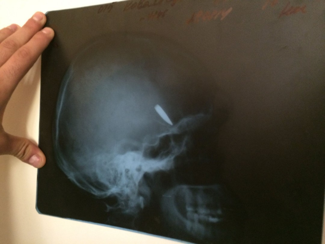 27 листопада 2014 року. Вже лікуючись у Київському шпиталі, Олександр Ковальчук демонструє рентгенівський знімок, який вивіз з собою із Донецька.
