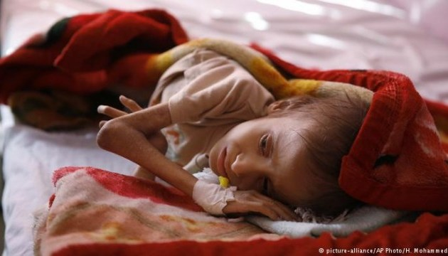 В Ємені ще 20 років страждатимуть від нестачі харчів через війну