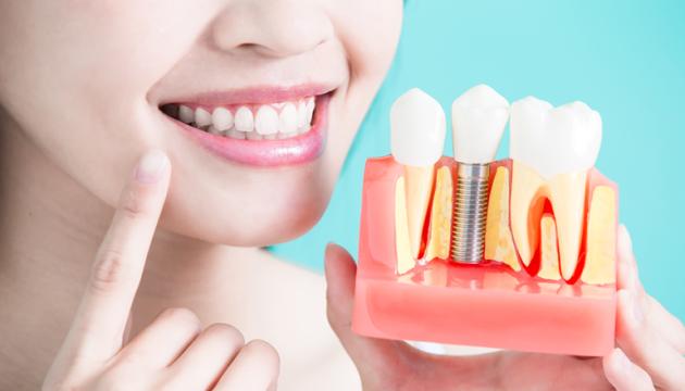 Современная Имплантация зубов в Киеве