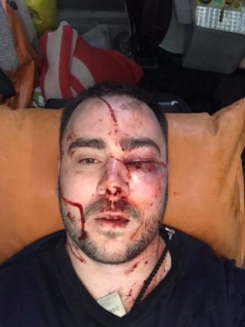 У Запоріжжі побили лідера «АвтоЄвроСили»