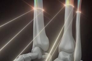 Украинский стартап будет печатать человеческие кости и органы на 3D-принтере