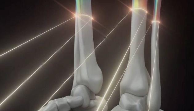 Український стартап друкуватиме людські кістки та органи на 3D-принтері