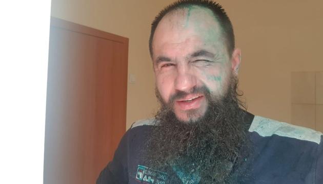 У Харкові облили зеленкою сепаратиста Головачова