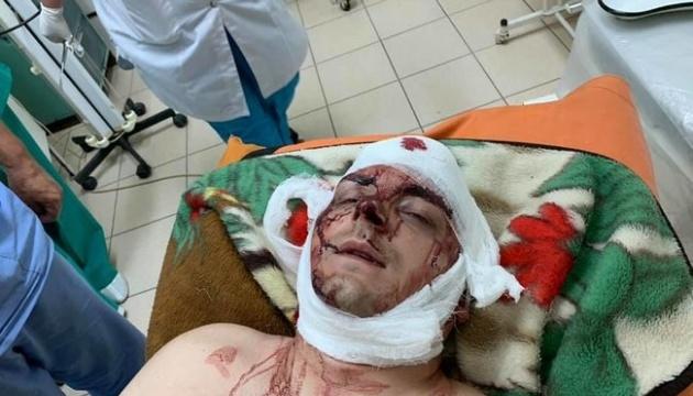 Напад на ексмера Конотопа: депутат заперечує причетність і хоче пройти поліграф