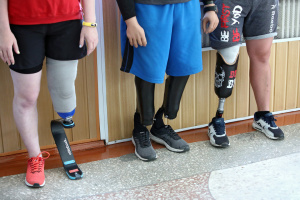 Уряд схвалив постанову про трансплантації кінцівок бійцям АТО/ООС