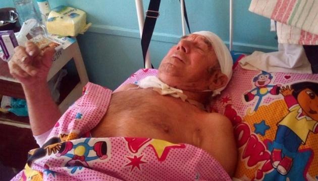 На Донбасі окупанти поранили мирного мешканця
