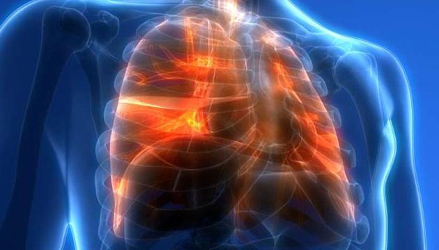 Легені колишніх курців здатні самостійно відновлюватися