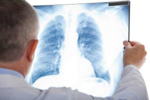 В столичных больницах - почти 400 пациентов с пневмонией