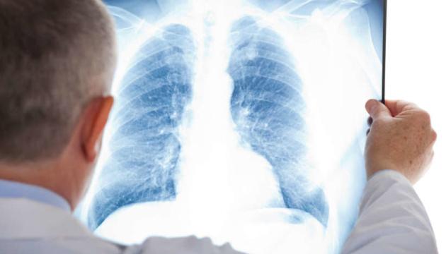 У столичних лікарнях - майже 400 пацієнтів із пневмонією
