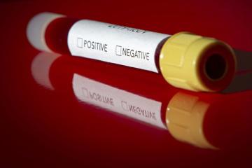 Ukrainian contracts coronavirus in Italy - media