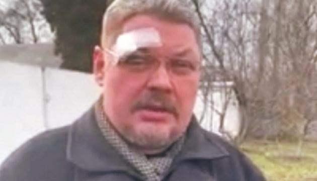 На Чернігівщині побили священника ПЦУ