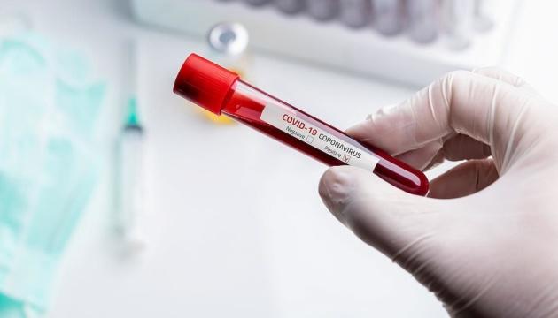 На Прикарпатье состояние санитарки, заболевшей Covid-19, медики оценивают как легкое