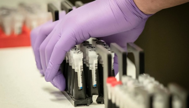 Панацея від коронавірусу: її ще не знайшли, але наполегливо випробовують