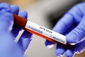 На Луганщині підтвердили третій випадок захворювання на COVID-19