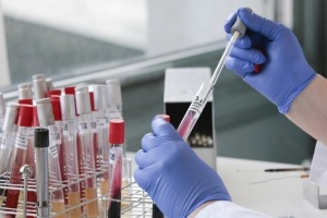 В больнице Бердичева начали ИФА-тестирование на COVID-19