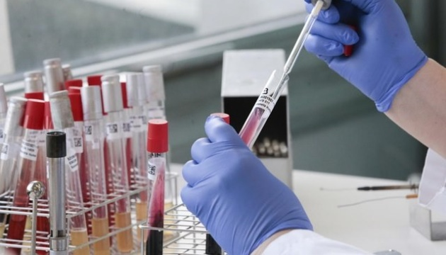 Коронавірус у ЗСУ: хворіють 30 військових, 49 - одужали